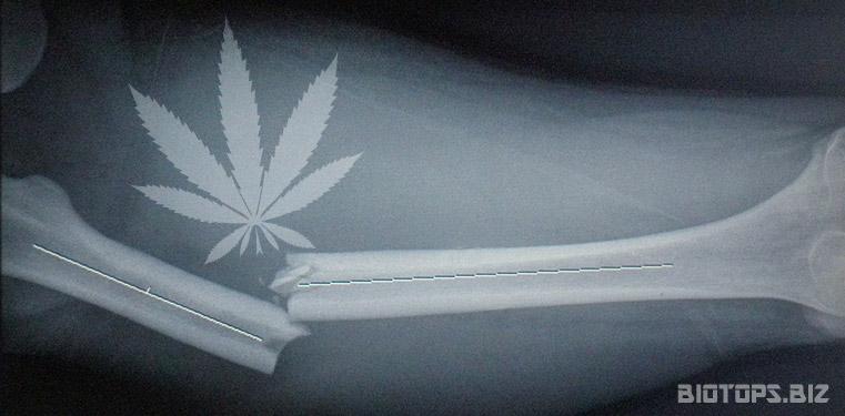 Le cannabis accélère les guérisons des fractures osseuses